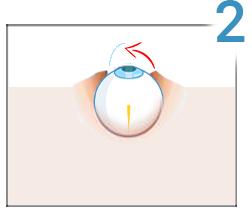 Lasik, step 2