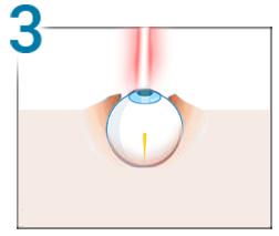 corectarea vederii cu laser dacă plus