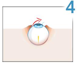 Lasik, step 4